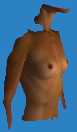 Ob Operation der Erhöhung der Brust zu machen
